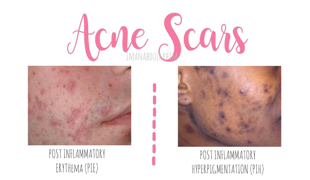 HOW TO REDUCE ACNE SCARS?